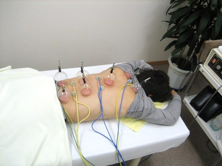 吸玉療法と低周波療法の組み合わせで心地よい刺激で眠気を誘います。